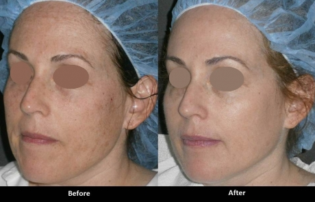 IPL Photofacial (Laser Procedure)