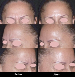 Botox (Frown Lines) (20 units)
