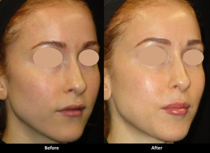 Fountain of Youth Rejuvenation (Laser Procedure)
