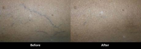 Laser Leg Vein Treatment