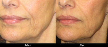 Laser Skin Tightening - Series of Five Treatments
